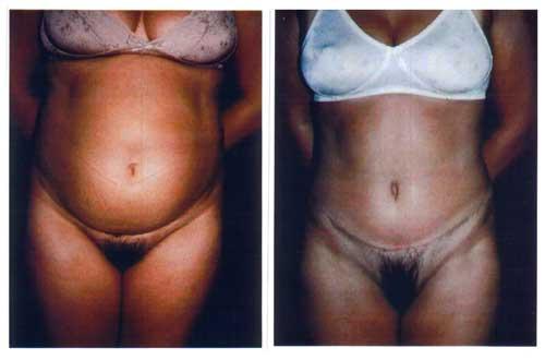 Antes y Despues de cirugia plastica